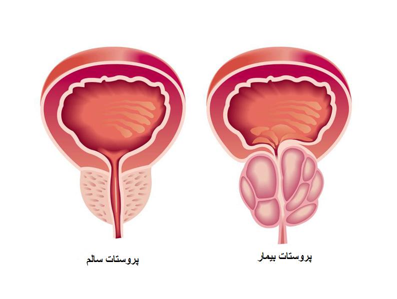 پروستات و درمان آن