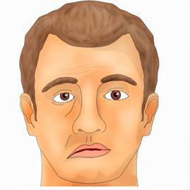 درمان لقوه (انحراف،فلج صورت)