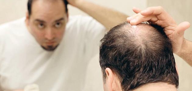مو و درمان آن